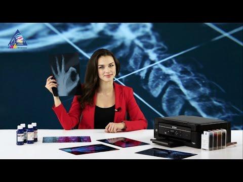 Как печатать рентгеновские снимки на струйном принтере?