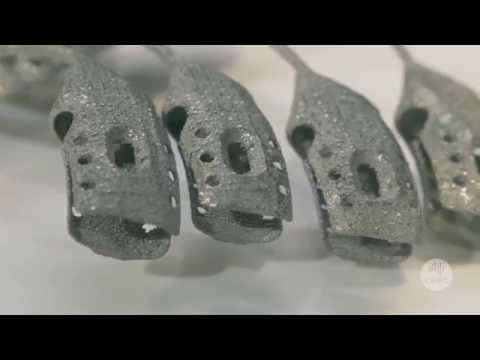 Paciente com câncer recebe implante de caixa torácica produzido em impressora 3D