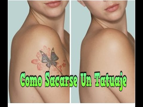 Como Sacarse Un Tatuaje Crema Para Remover Tatuajes Metodos Para