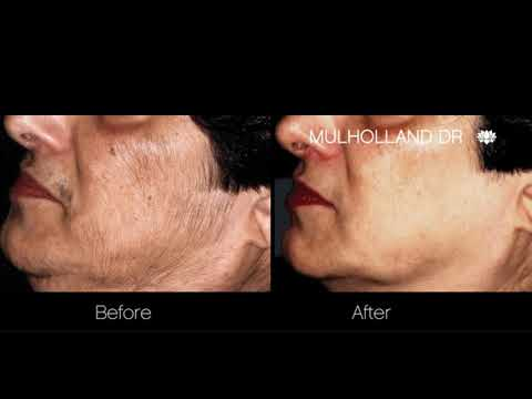 Laser Hair Removal With Dr. Mulholland | SpaMedica Toronto