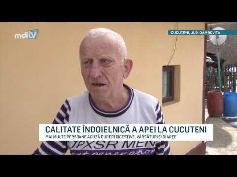 CALITATE INDOIELNICA A APEI LA CUCUTENI