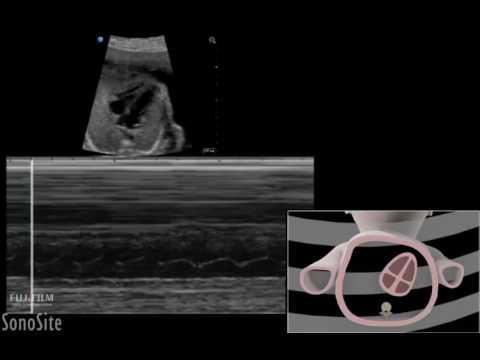 3D Animation Pregnancy Fetal Viability