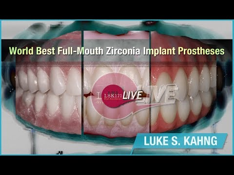 World Best Full-Mouth Zirconia Implant Prostheses