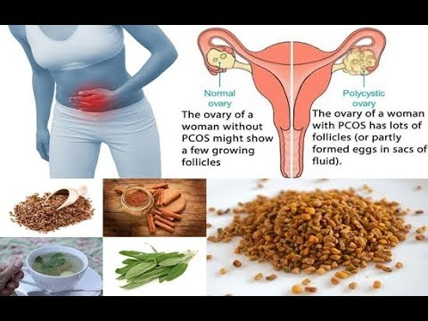 Home Remedies for Polycystic Ovary Syndrome (PCOS).pcos natural treatment