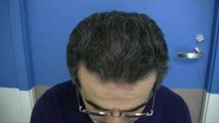 Portland Hair Transplant - 1.800.859.2266