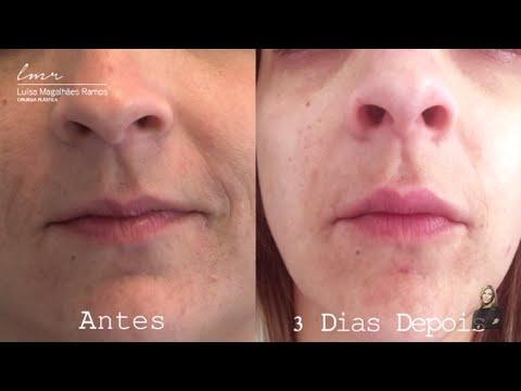 Aumento dos Lábios com Ácido Hialurónico (Antes e Depois) - Drª Luísa Magalhães Ramos