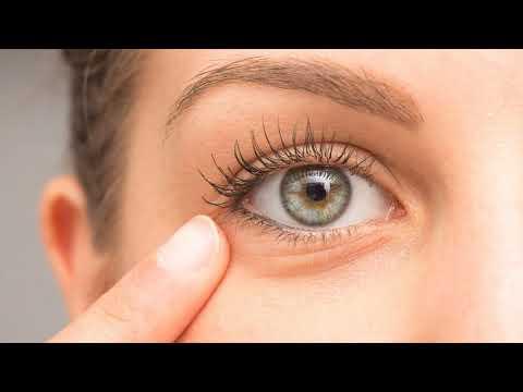 Почему дергается верхнее веко левого глаза, правого глаза причины и что делать