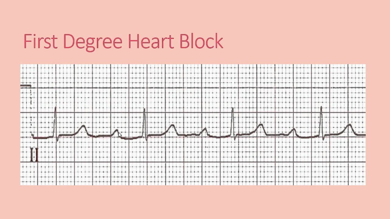 lidocaine and first degree heart block