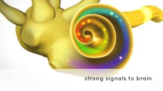 Hearing Studio   Normal Hearing vs High Frequency Hearing Loss