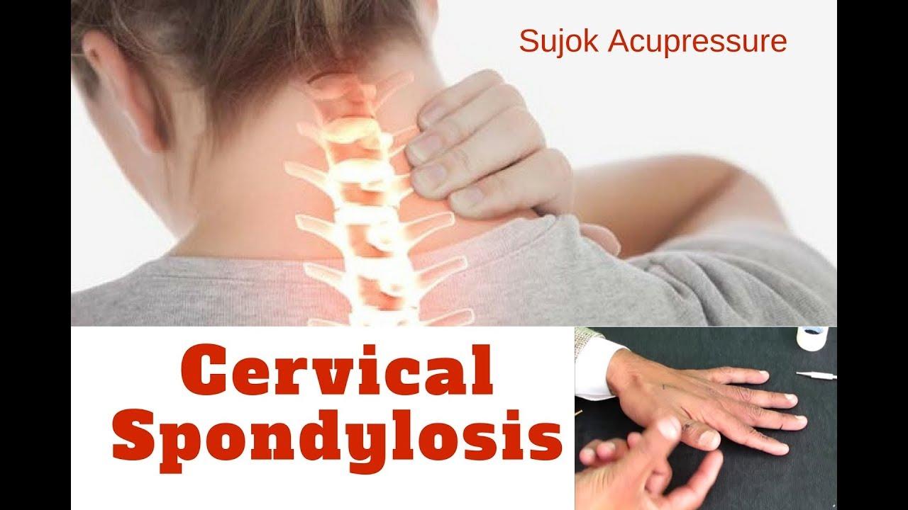 How to treat Cervical Spondylosis by Sujok Acupressure ...