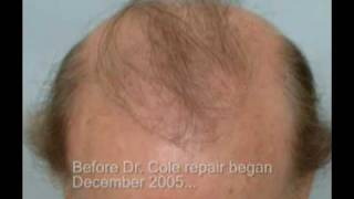 Forhair.com - Body Hair - Repair -patient 3 - Dr. Cole