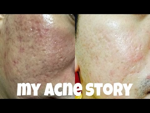 how to get rid of deep pitted acne scars naturally