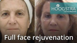 Full face rejuvenation (21087)