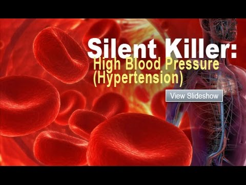 the silent killer Known as silent killers, they're characterized by subtle symptoms that often go undetected in women, these stealthy life-threatening illnesses strike up to 10 million each year and kill over 100,000.