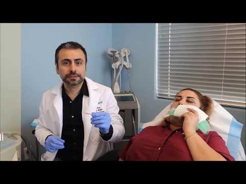 Lip Enhancement using Thread Lift at Florida Cosmetic Center