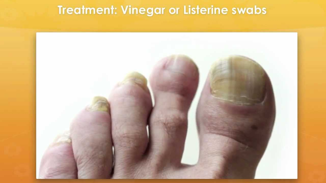 Have Yellow Toenail Fungus? Get Rid Of Your Nail Fungus For Good ...