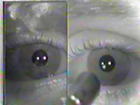 Abnormal Cranial Nerve Exam : Cranial Nerves 2 & 3- Pupillary Light Reflex