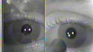 Abnormal Cranial Nerve Exam : Cranial Nerves 2 & 3- Pupillary Light Reflex