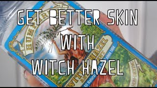 Get Better Looking Skin Instantly With Witch Hazel!