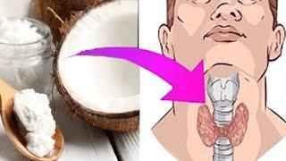 Das passiert wenn du jeden Tag einen Löffel Kokosöl zu dir nimmst