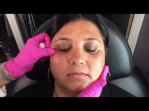 Undereye Filler with Cannula