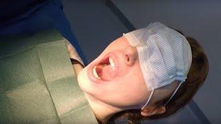 Extraction des dents de sagesse sous Anesthésie Locale