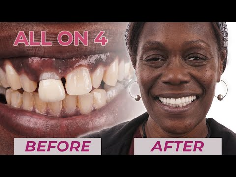 All-On-4 Dental Implants Before & After Missing Teeth Smile Transformations | Dental Boutique