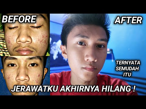 Hello guys!! Don't Forget To Like,acomment,Share and Subscribe this videoo . . Order Cream Wajah Chat : Wa : 085893088122 Ig....