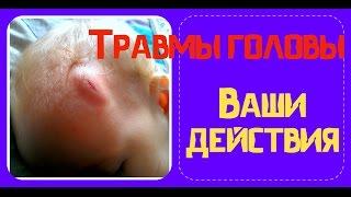 видео Что делать, если ребенок упал и ударился головой? Комаровский рекомендует...