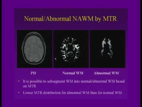 White Matter Disease CT and MRI