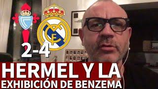 Celta 2-4 Real Madrid   Hermel y el vídeo sobre Benzema que siempre quiso hacer   Diario AS