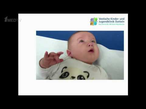 Kevin Rostasy (Germany), SIOP Asia 2016– Neurological signs of neuroblastoma