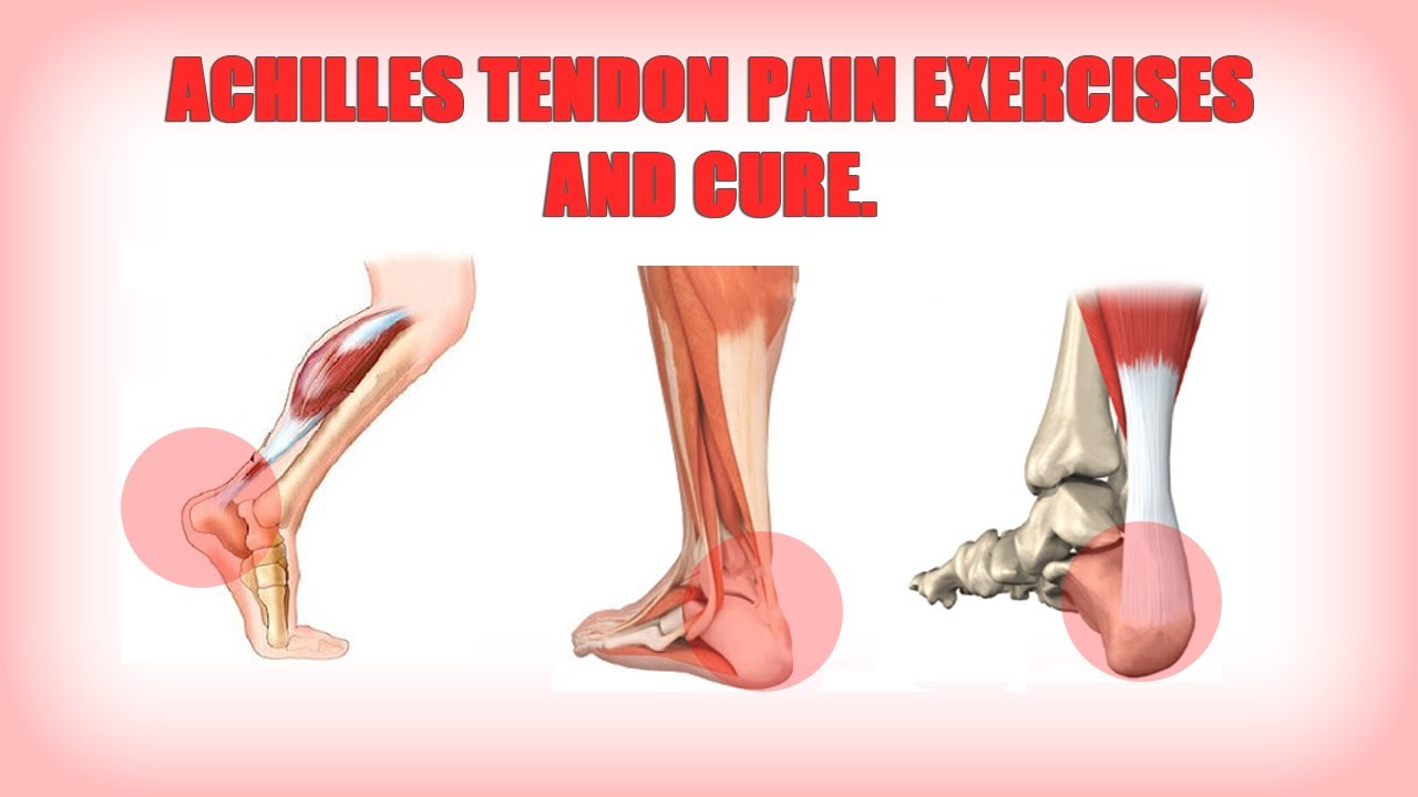 Achilles tendon rupture physical therapy - Achilles Tendon Rupture Physical Therapy 36