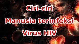 Ciri Orang terinfeksi viru HIV