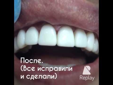 Виниры цена на один зуб. Виды, фото и отзывы на виниры