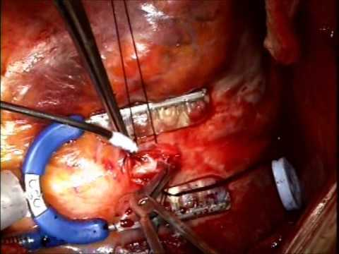 Coronary Bypass Surgery on an inoperable patient with Porcelain Aorta