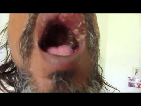 Herpes Zoster In Oral Cavity & Face