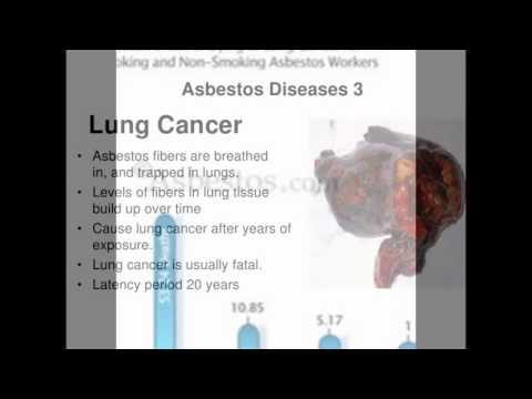 Asbestos Fibers In Lungs : Asbestosis pulmonary disorders merck manuals professional edition
