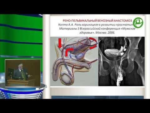 Капто А.А.  Клинические аспекты сосудистой анатомии у больных варикоцеле.