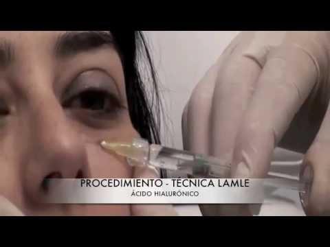 Eliminar-corregir ojeras con ácido hialurónico | Técnica LAMLE - Dr. Guilarte