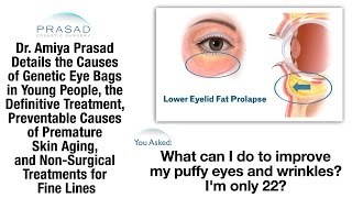 How to Get Rid of Tired Puffy Eyes, What Causes Wrinkles Prematurely, & Their Treatment