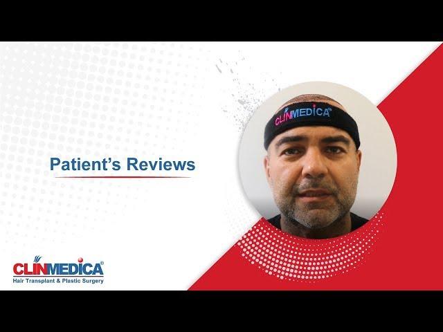 Trasplante de capilar en Turquía en ClinMedica - Comentarios de pacientes