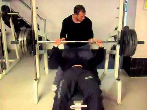 Bench Press Gone Wrong Resulting In Torn Pec Youtube