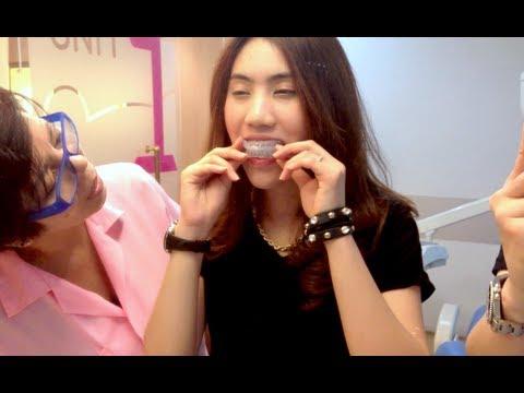 รีเทนเนอร์จัดฟันแบบพิเศษ (Tooth Positioners)