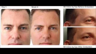 LifeCell Antiaging Skin Care Cream Review| Best Face Cream for Wrinkles Thumbnail