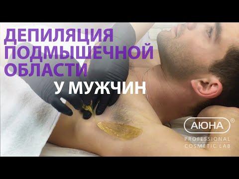 ШУГАРИНГ подмышечной области у мужчин | УЦ АЮНА