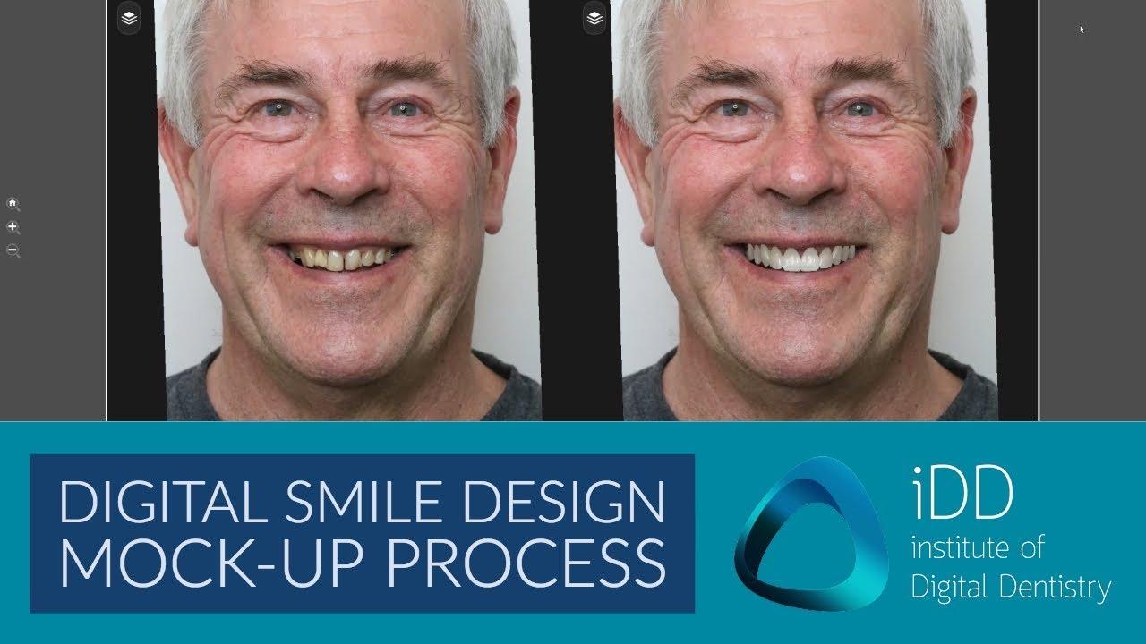 Digital Smile Design Mockup Process Institute Of Digital Dentistry