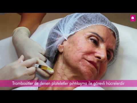 PRP İle Yüz Gençleştirme Antalya - DK Klinik