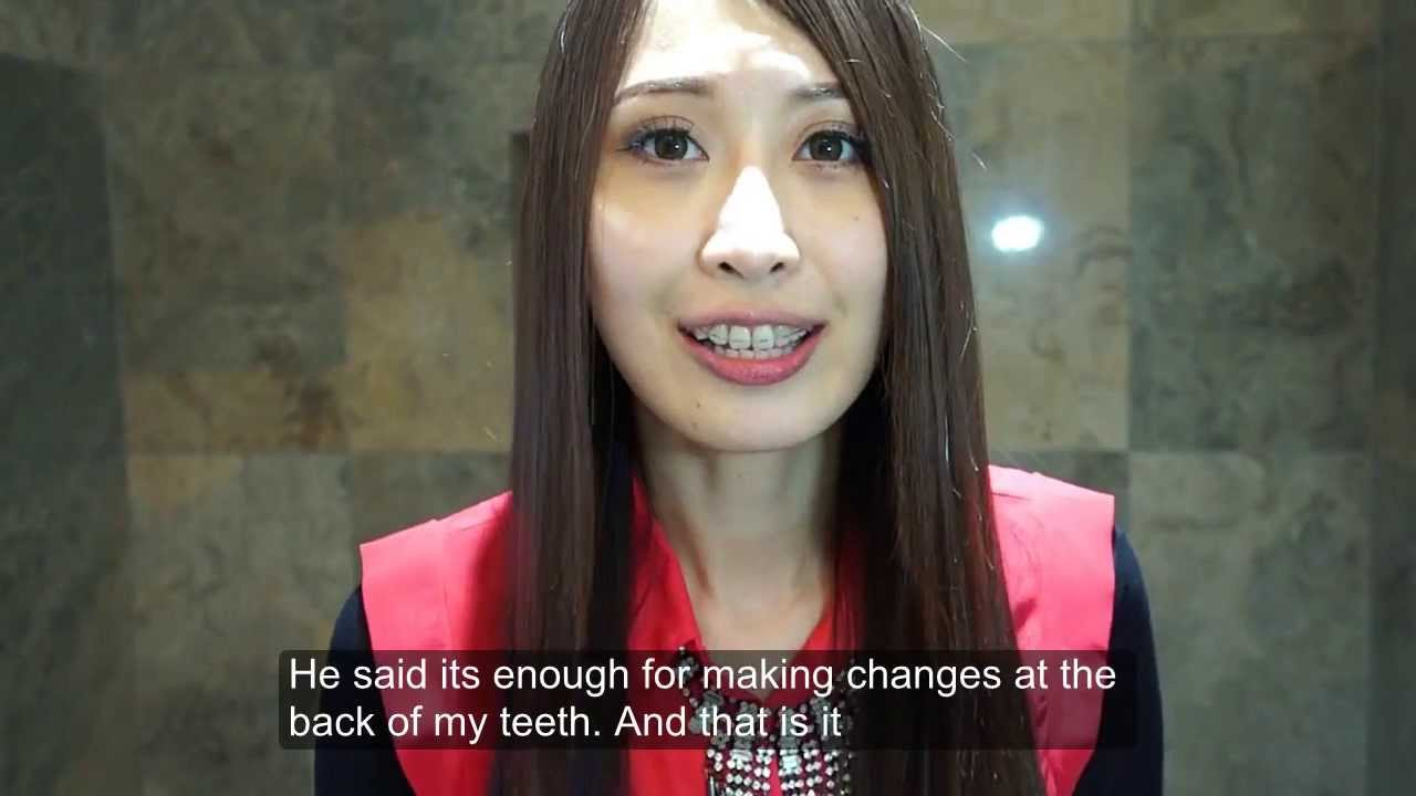 2 months clear braces update ( braces coloring and new thicker ...