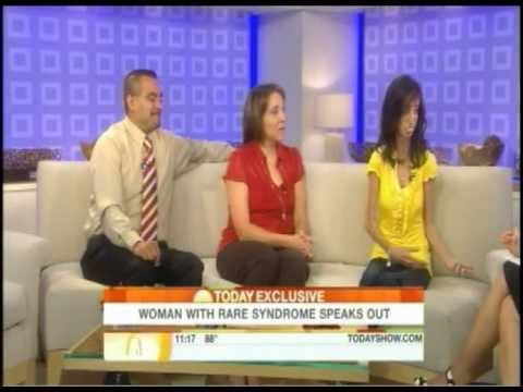 Today Show Interview